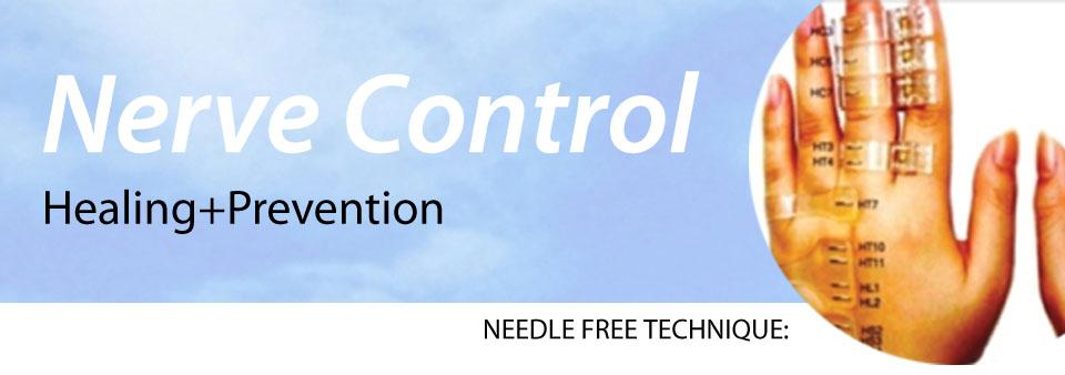 nerve control snc - 1