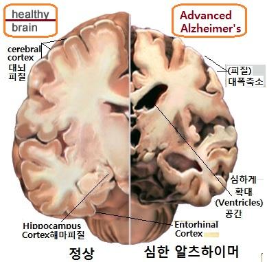 a alzheimer2-brain-nia