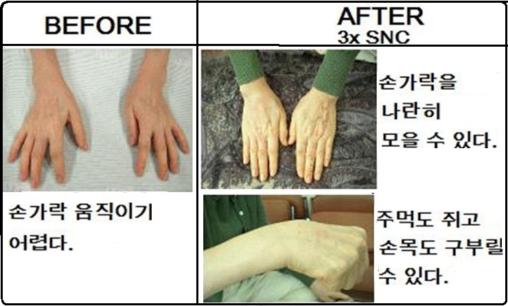 arthritis rheumatoid right