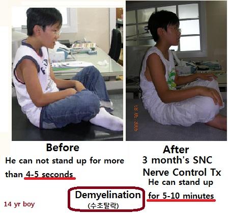 demyelination1