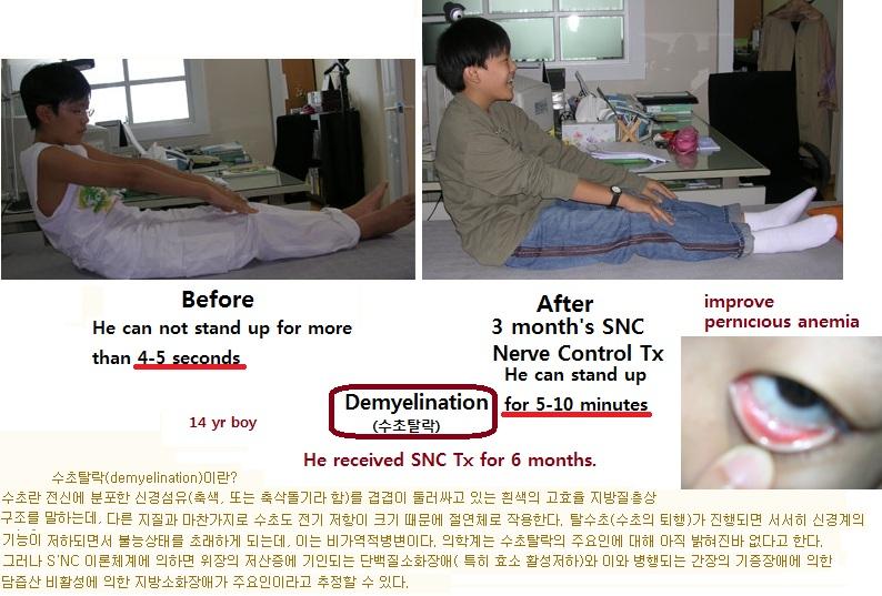 demyelination2