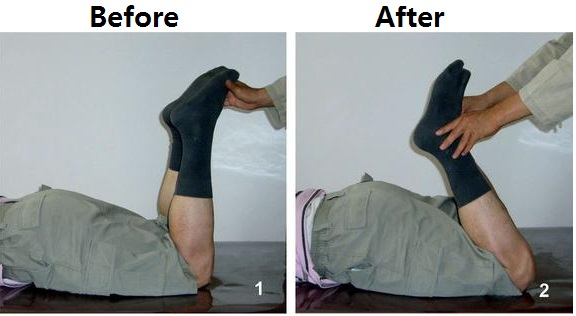 leg movement before after
