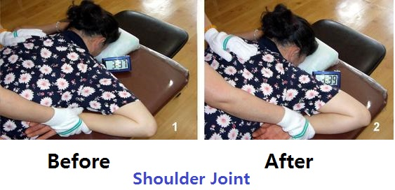 shoulder joint before after