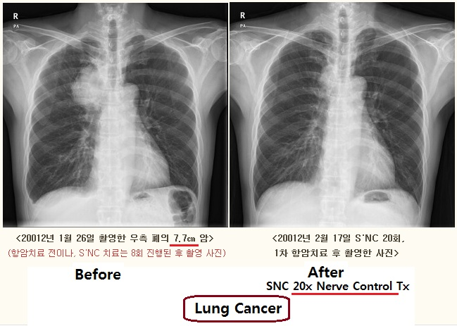z cancer of Rt Lung