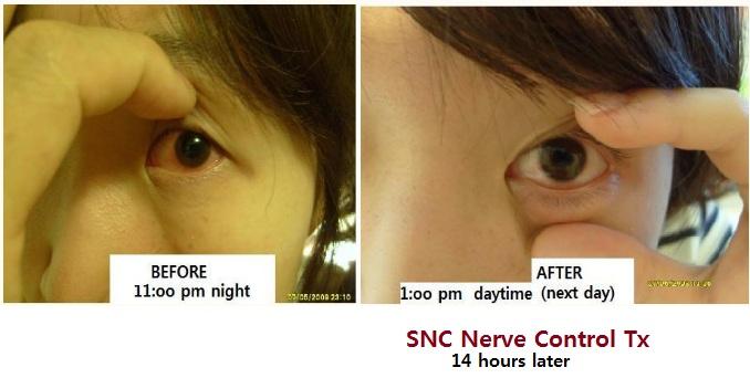 z eye congestion2